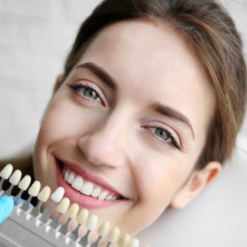 Young woman choosing dental veneers